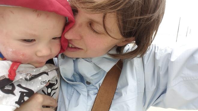 Hilfe, mein Baby hat Neurodermitis, wenn ein Baby Neurodermitis hat, müssen vor allem die Eltern viel lernen. Liebe und Geduld und den weg.